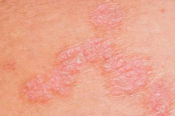 آیا کرونا بر پوست تأثیر دارد؟